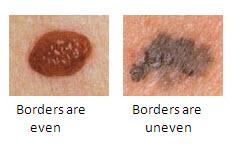 Mole Borders