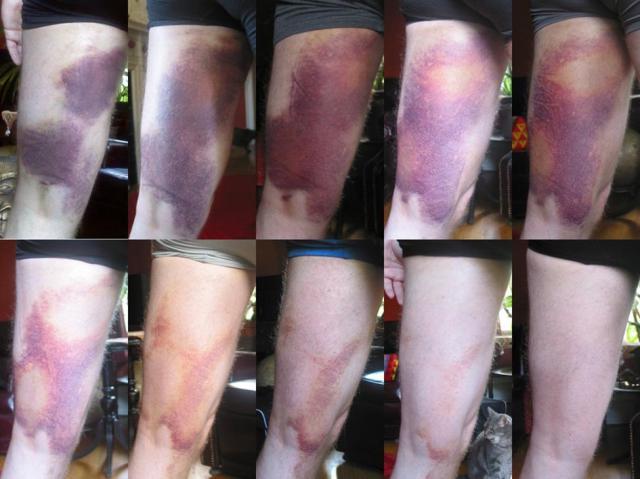 Thigh Bruise