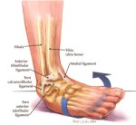 Inversion Ankle Sprain