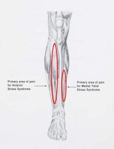 When Shin Splints Become More Serious Chkd Sports Medicine Blog